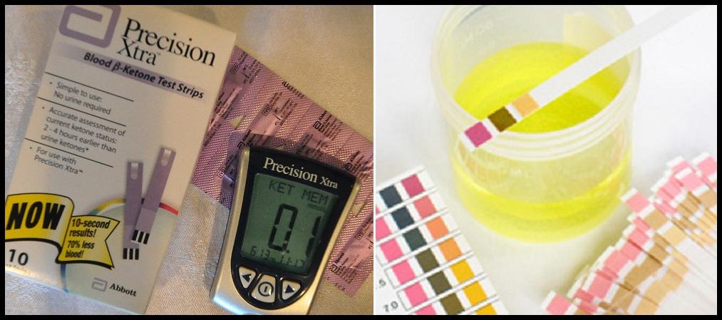 socker i urinen test